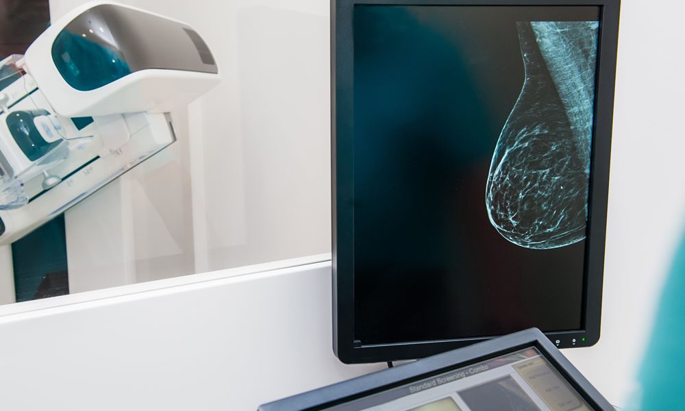 mammogram image of breast on screen